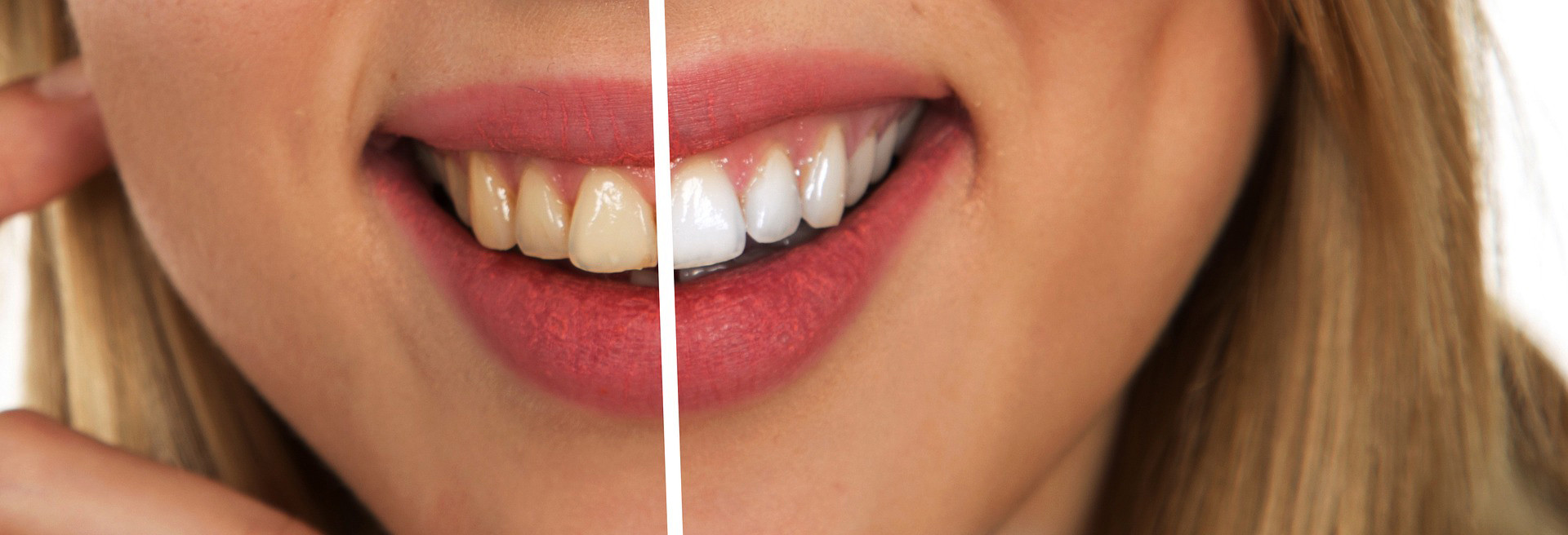 Lady smiling with before and after whitening